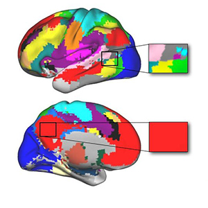 Brain network maps