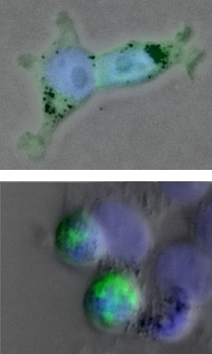 Mutated protein causes clumps in cells