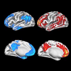 brain plaques
