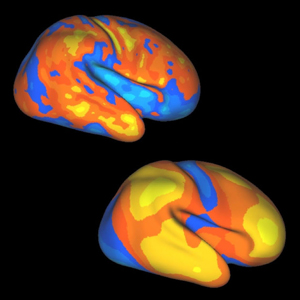 Brain expansion