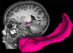 Hippocampus MRI