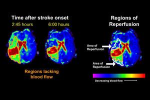 Stroke MRIs