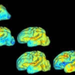 3-D mapping babies' brains