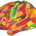 Brain scans may help diagnose neurological, psychiatric disorders